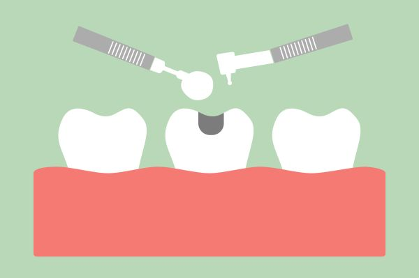 What To Expect When Getting Dental Fillings [Dental Restoration]