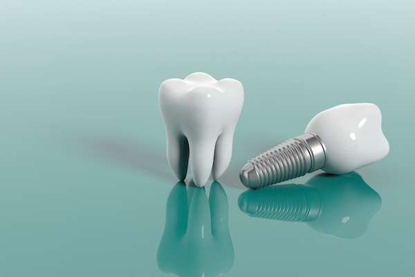 Questions To Ask Your Implant Dentist